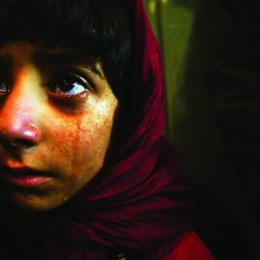 Kashmir, 2005: A Kashmiri girl cries as she receives treatment at a hospital near the Line of Control (LOC). She was injured in the South Asia earthquake. Photograph/ Arko Dutta, Reuters