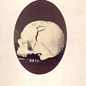 Surgical Specimens: A surgical photo of a skull which was badly shattered by a shell in the American Civil war.