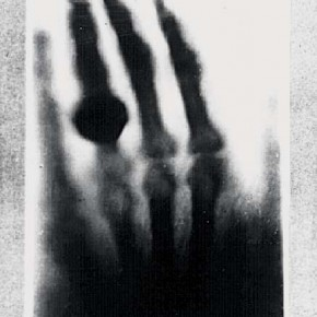 X-Rays: Made in 1895, this is a print of Willhelm Röntgen's first X-ray of his wife's hand.
