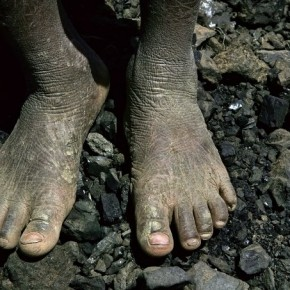 An 8-year-old boy stands on the coal with his dried, diseased feet as he takes a break from his routine work at a brick kiln in Meerut. Photograph/ Harish Tyagi
